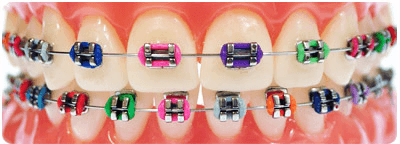 An Array of colors to choose from at Reagin Orthodontics