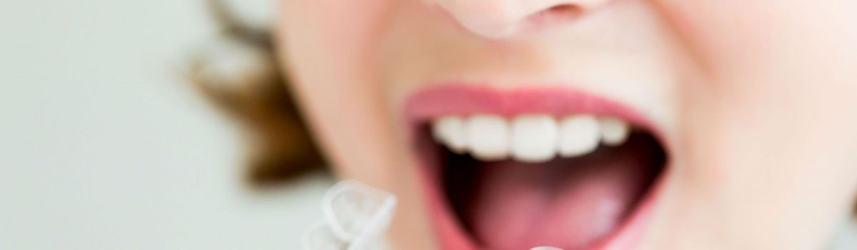 The Truth About Invisalign
